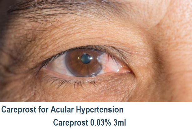glaucoma, buy careprost for glaucoma